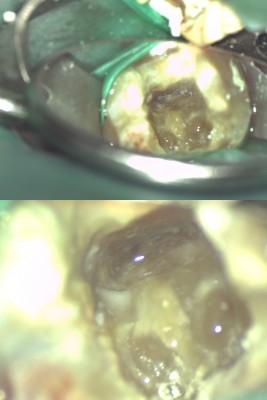 拡大して見える歯の根っこ